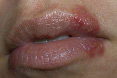 munsår utan herpes