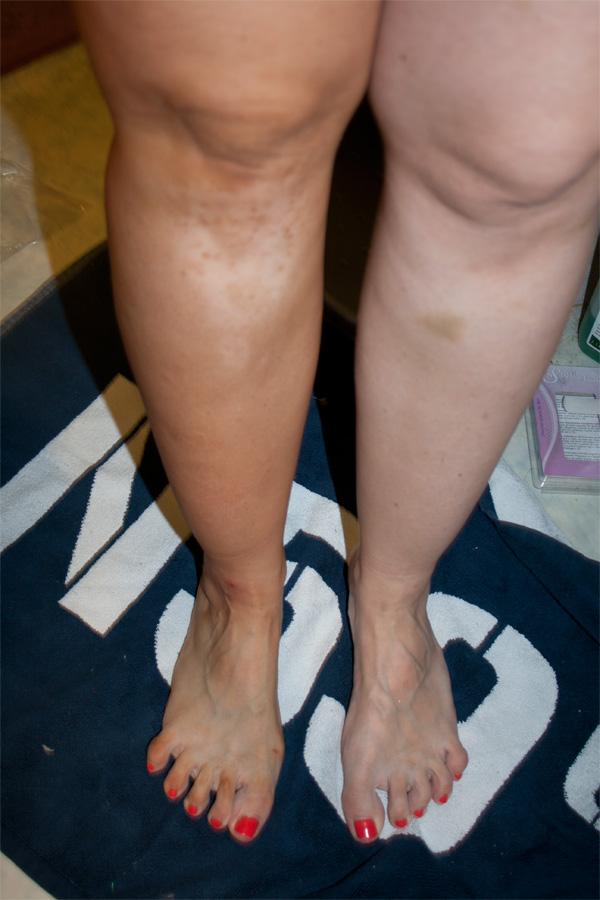 pigmentfläckar på benen