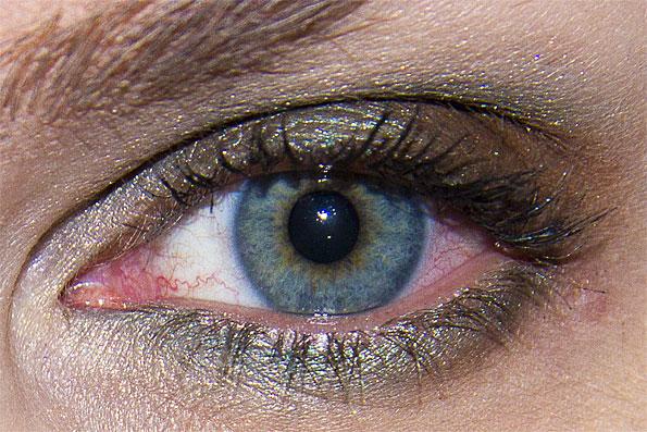 röd i ögonvrån